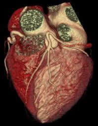 Angiotac coronario 2