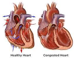infarto e icc